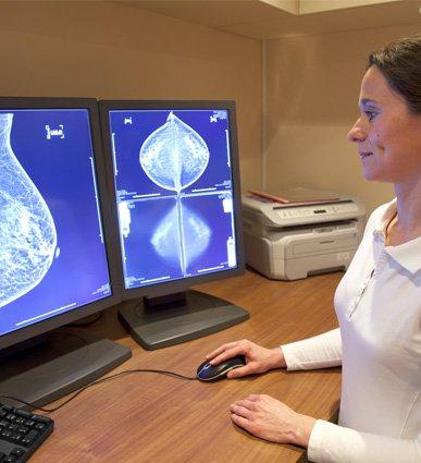 mammogram-pic-1