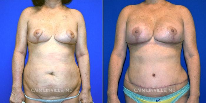 Breast Reconstruction 01