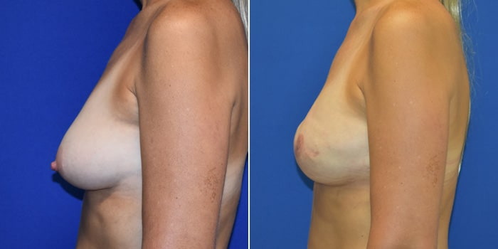 Patient 04 Left Side View Breast Reconstruction Breast Health Institute Houston
