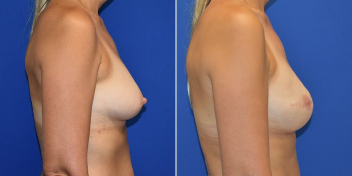 Patient 04 Right Side View Breast Reconstruction Breast Health Institute Houston