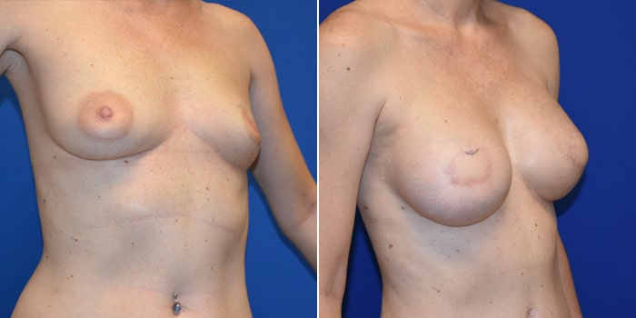 Patient 06 3/4th Right Side View Breast Reconstruction Breast Health Institute Houston