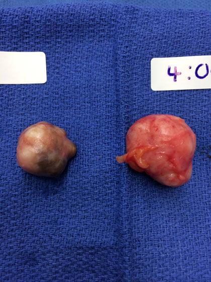 fibroadenoma caner Dr Darlene M. Miltenburg
